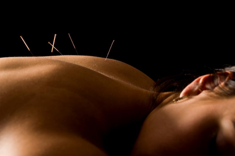 acupuncture_woman.jpg
