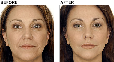 more on Juvederm