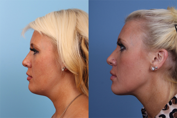 before and after Kybella injection