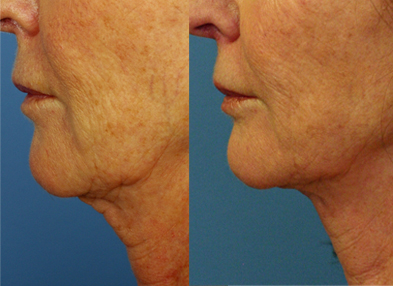 Before & after Ultherapy by FacesFirst