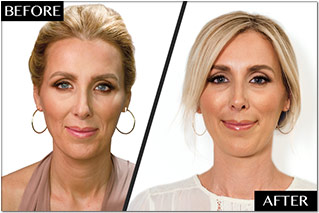 filler before and after 1