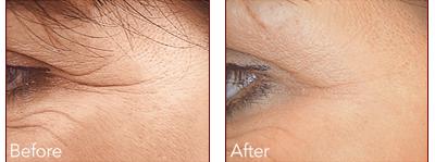 Dermal Filler Before and after 3