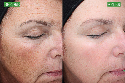 VIPeel Before & After
