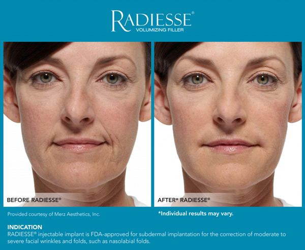 Radiesse Dermal Filler Before & After