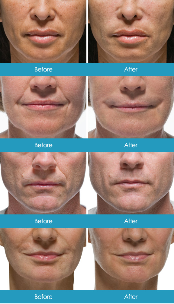 Radiesse Before & Afters Nasal Labial Folds Multiple Images