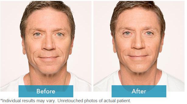 Dermal Filler Before and after 2