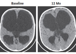 CT scans of infant brains. Scan on the left shows infant_s brain before endoscopic surgery _ETV-CPC_. Scan on the right shows 12-month postoperative scan of the same infant_s brain.