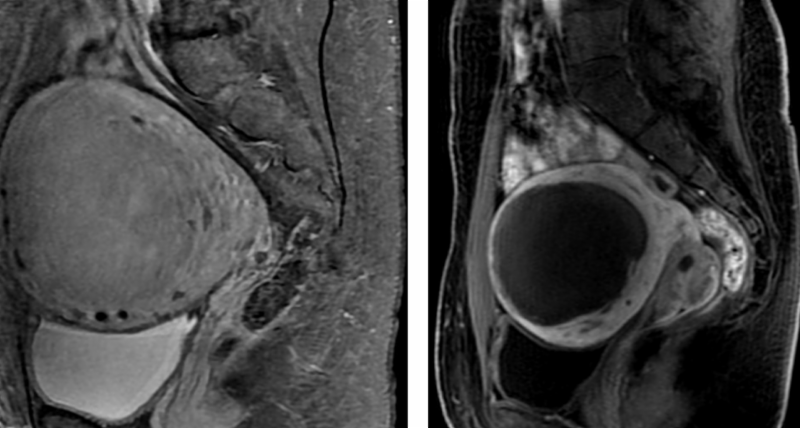 Uterine embolization before and after 2