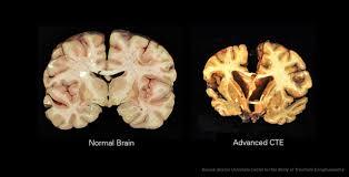 brains_normal_vs_cte