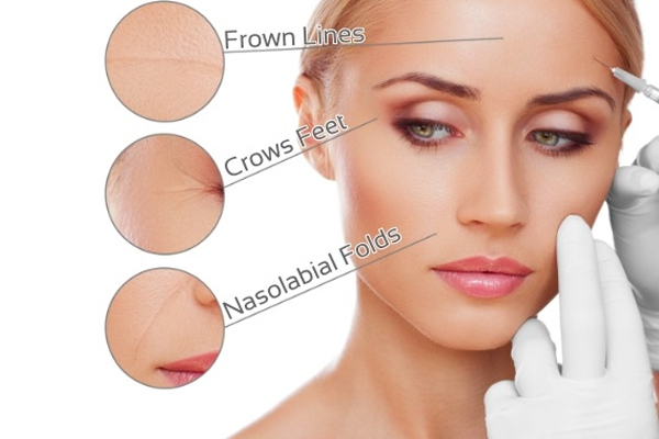 Revised with date time educate yourself on botox fillers solutioingenieria Choice Image