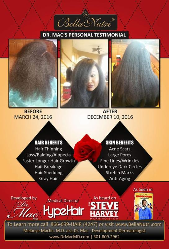 Join Dr Melanye Maclin In The 90 Day Hair Growth Challenge With Bellanutri As Seen Above Reveals Her Own Personal Challenges And Shares