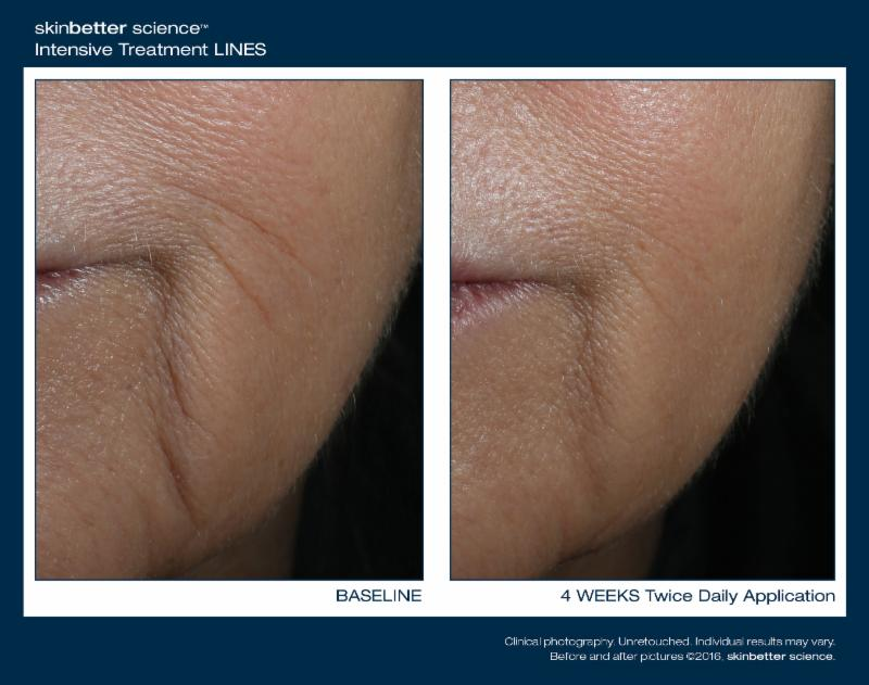 SkinBetter before and after