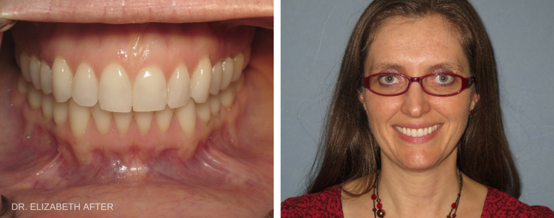 Dr. Elizabeth_s Smile After Invisalign