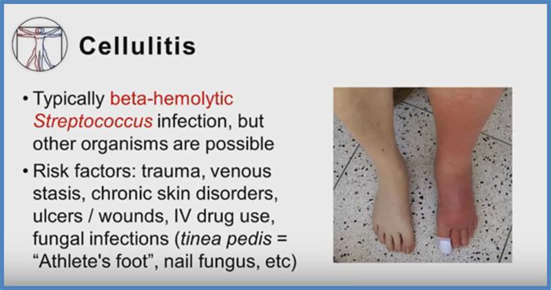 cellulitis en erysipelas