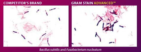 Gram stain comparison