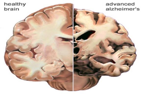 healthy brains vs alzheimer's deteriation