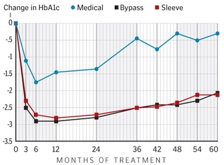 Diabetes Care Intensive Medical Management Vs Surgery With 5 Year