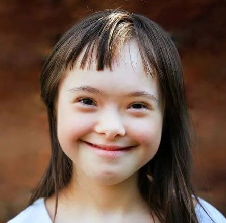 smiling young girl with downs syndrome