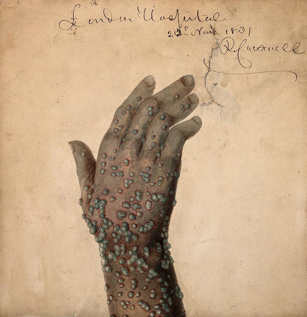 041520i-epidemic-smallpox-arm.jpg
