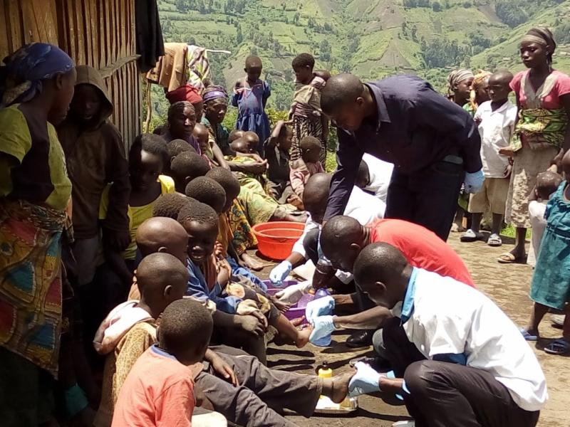 Congo Jiggers