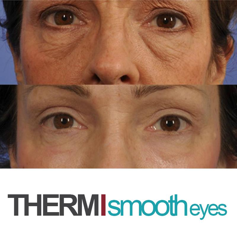 ThermiEyes Holiday Special