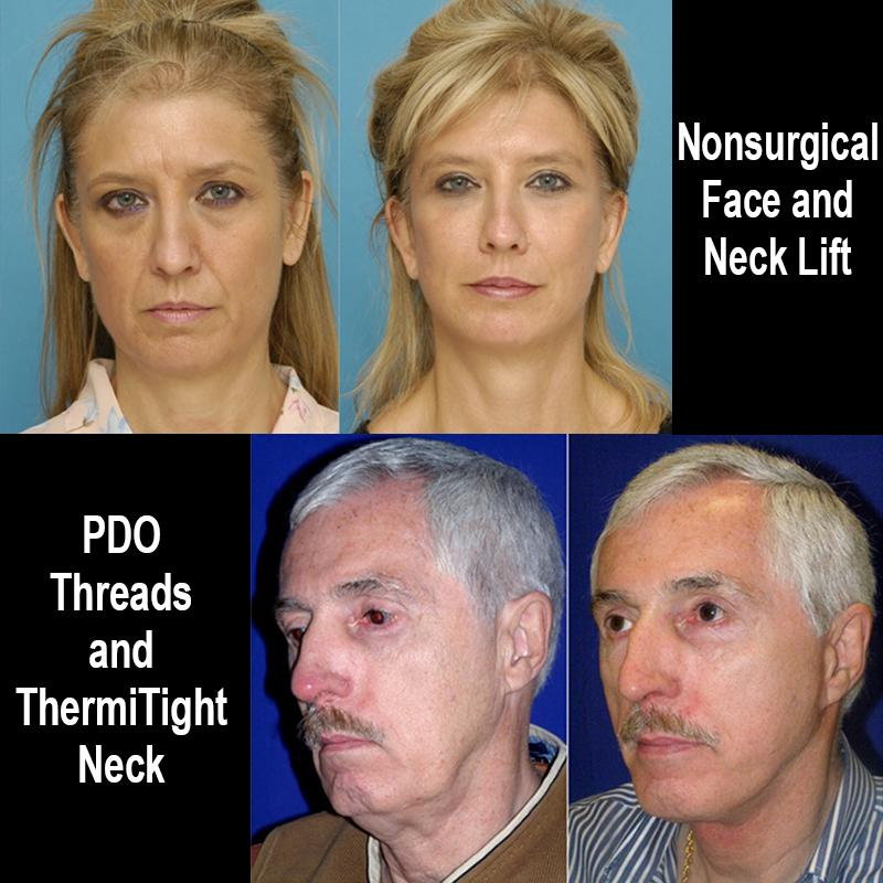 NonSurgical Necklift and Facelift