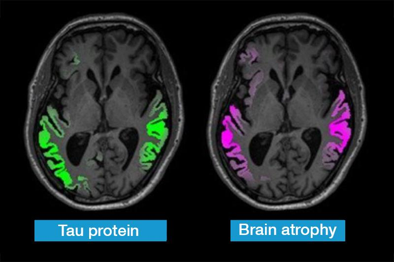 Tau protein mapping and resulting brain atrophy