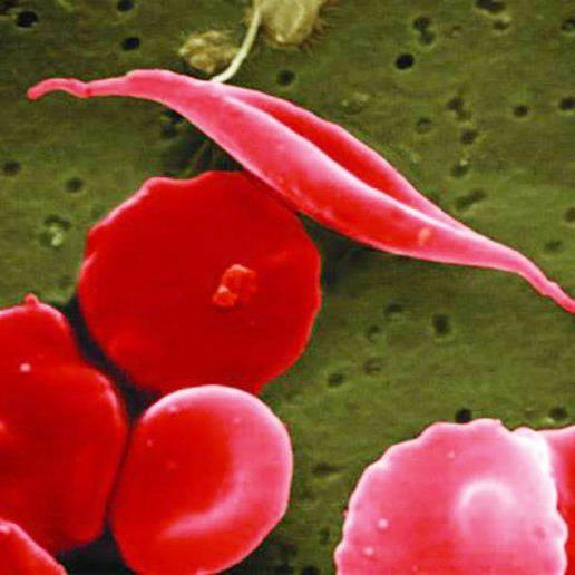 Microscopy of an elongated sickle cell