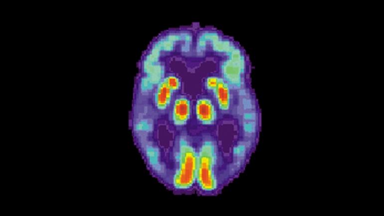 PET scan of a brain