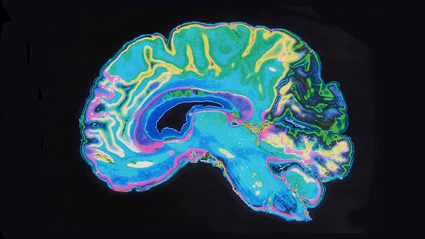 CT scan of a brain