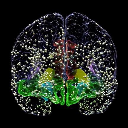 Brain electrode sites