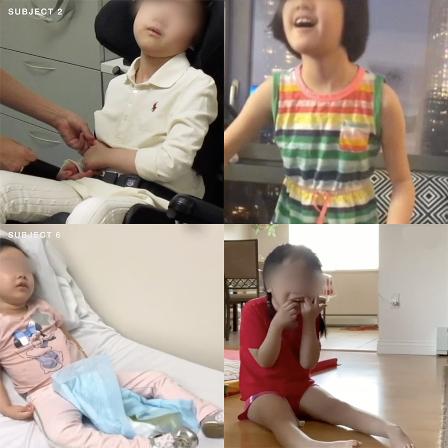 Children walking or sitting up after gene therapy for AADC deficiency