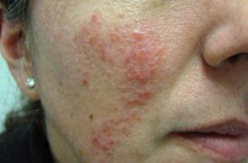 A number of lifestyle factors can trigger rosacea to flare up, including hot and cold weather, sun exposure, stress, and hot or spicy food and drinks.