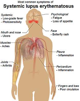 Common symptoms of lupus