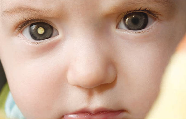 Photo of a baby with retinoblastoma in right eye