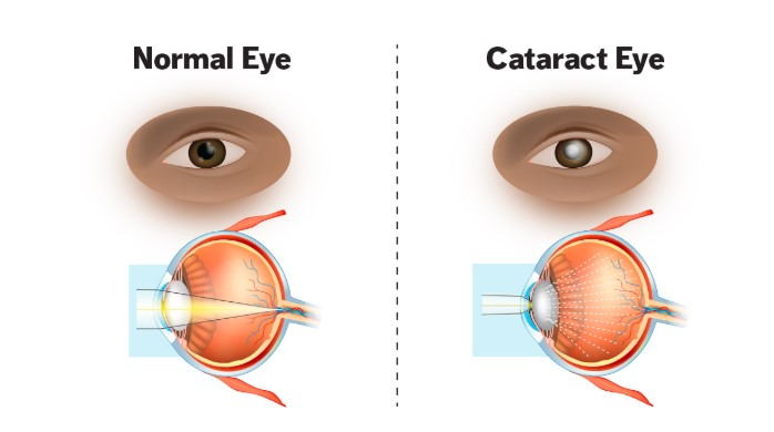 One eye showing what normal vision is and another eye showing what a cataract eye looks like