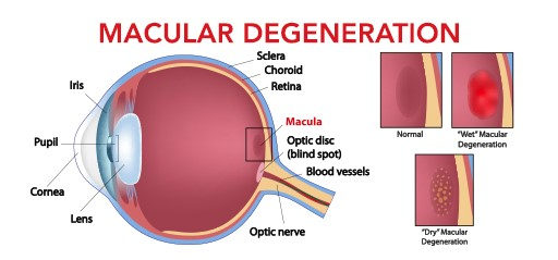 graphic of an eye with macular degeneration