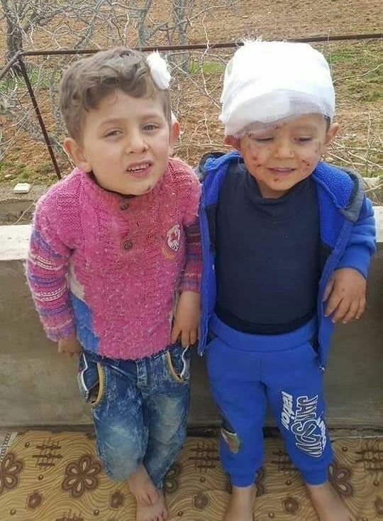 2 children survived attacks in Khan Sheikhoun