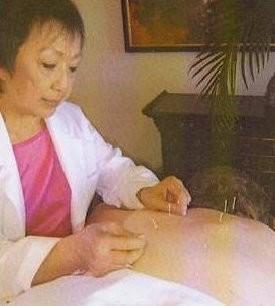 Effie Acupuncture