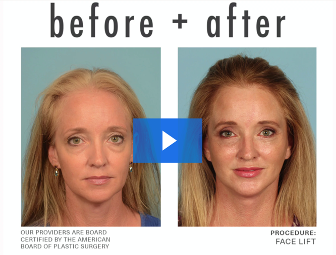 Before and after facelift video
