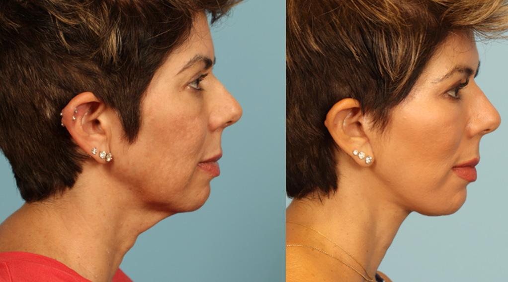 Before and after facial rejuvenation