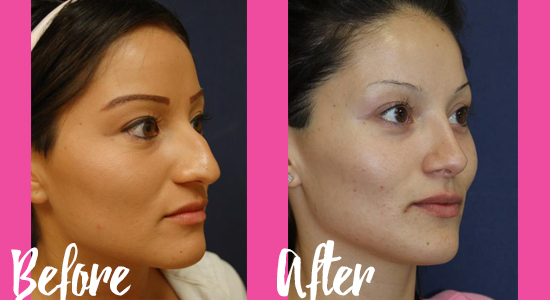 http___www.lajollaskin.com_photo-gallery_facial-sculpting_nose-surgery-rhinoplasty_page_1