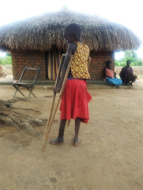 9-yr-old African girl, Aliru Sevia, on crutches with a broken leg - in front of hut