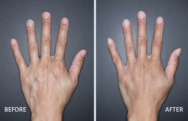 before and after restyle Lyft hands