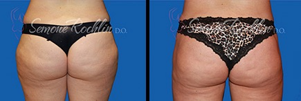 Before and after liposuction