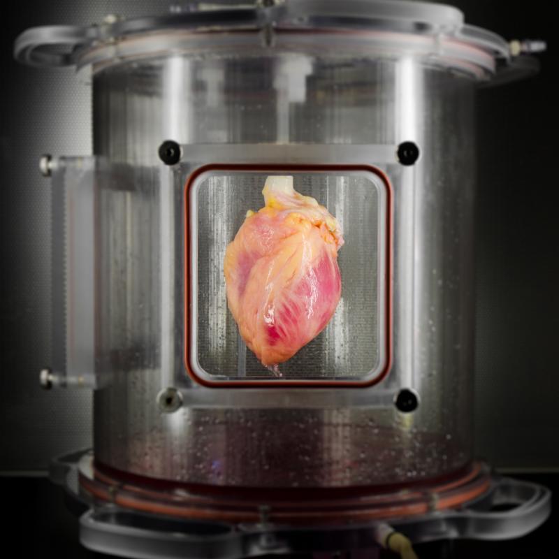 Photo of bioengineered heart