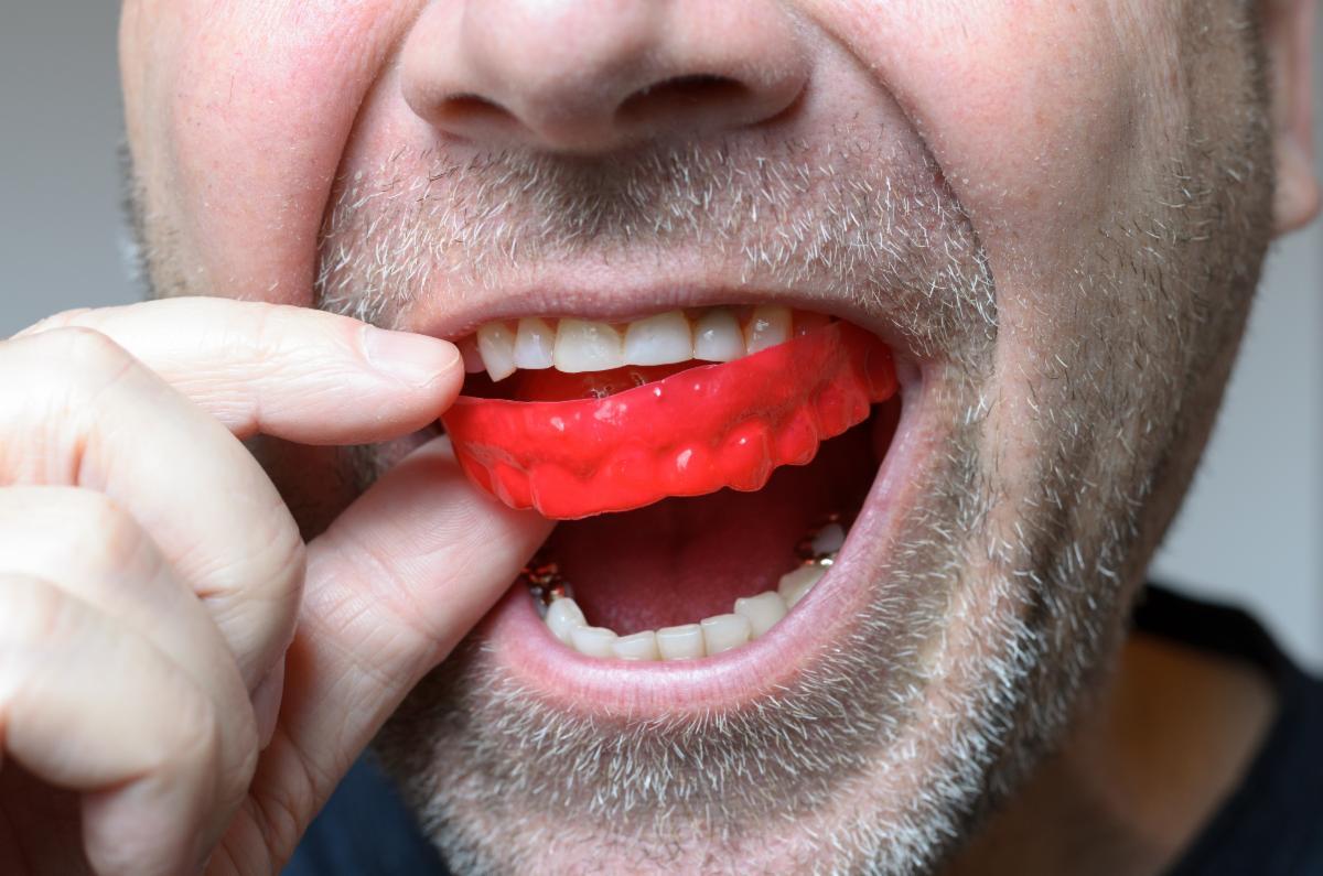 Mouth-Guard.jpg
