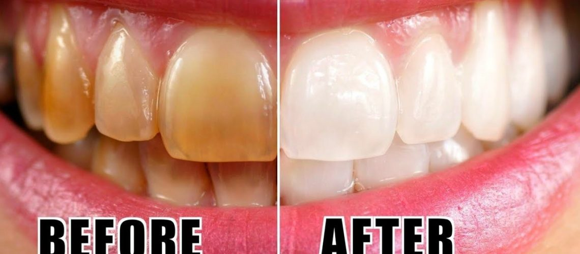 teeth whhitening.jpg