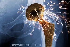 NewsInferno.com hip implant