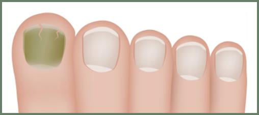 The Nail Lady Blog